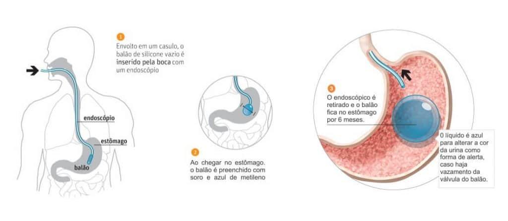 cirurgia bariátrica balão intragástrico
